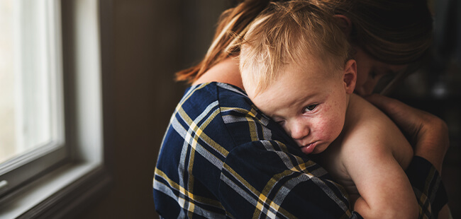 Patient Case Study | Baby O: Unresolved eczema, gastro-oesophageal reflux disease and GI symptoms despite trying several amino acid formulas